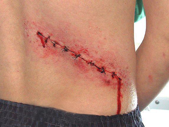 La hernia la operación intervertebral